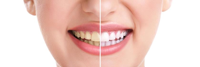 Izbeljivanje zuba - Stomatoloske usluge