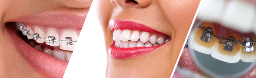 Totalne i parcijalne zubne proteze, fasete ili viniri